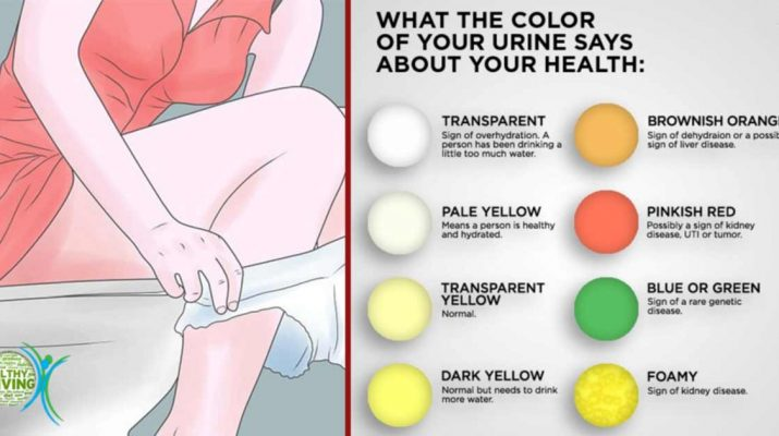 What Does The Color Of Your Urine Say About Health